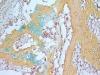 Struttura ossea derivata da una singola cellula staminale umana: in giallo losso, in blu la cartilagine, in rosso il midollo osseo (Fonte: Chan and Longaker et al.)