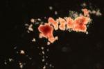 Una colonia di cellule del sangue sviluppata a partire da una singola cellula, isolata da un uomo di 59 anni (fonte: Mairi Shepherd, Kent Lab)