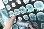 La sonnolenza diurna legata al rischio di ammalarsi di Alzheimer