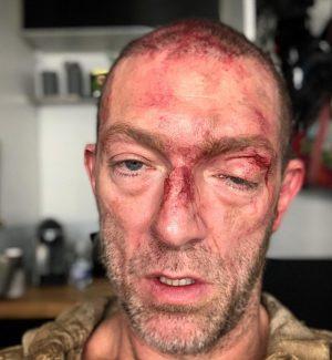 Vincent Cassel, cosa è successo all'attore? Lo scatto spaventa i fan
