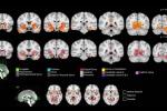 Sono evidenziate le regioni del cervello di ragazzi di 14 anni aumentate di volume in seguito al consumo di cannabis (fonte: Orr et al., JNeurosci, 2019)