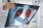 Asp di Siracusa, tumori: maggiore incidenza nelle donne