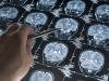 In Francia: test clinici selvaggi su malati di Alzheimer