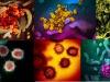 Immagini del coronavirus SarsCov2 ottenute dal Niaid con il microscopio elettronico (fonte: NIAID-RML)