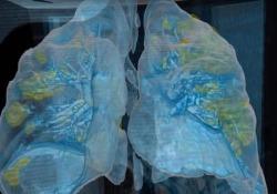 Ecco i polmoni di un paziente che ha contratto il coronavirus Keith Mortman, medico all'ospedale universitario George Washington, ha creato un modello di realtà virtuale a 360 gradi dei polmoni di uno dei suoi pazienti - Dalla Rete