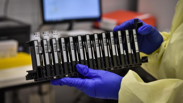 coronavirus, test sierologici, Agrigento, Cronaca