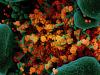 In arancione le particelle del virus SarsCoV2 (fonte: NIAID)