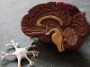 Boom di malati neurologici a Palermo, l'sos dei medici: la pandemia ha bloccato l'assistenza