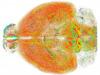 Nuova tecnica ottica per lo studio del cervello