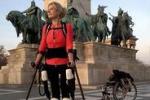 Una donna cammina grazie a delle protesi fatte con stampante 3D