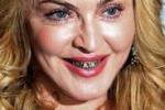 Sorriso supertrash, Madonna a Roma sfoggia i denti d'oro