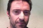 """Jackman: """"Avevo cancro alla pelle"""", le foto su Instagram"""