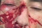 """""""Incidente sul lavoro"""" per Brumotti: il volto insanguinato su Instagram"""