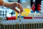 Laboratori d'analisi, stop al recupero somme Il Cga: nessuna restituzione alla Regione