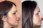Scoperta la misura del naso perfetto, punta a 106 gradi